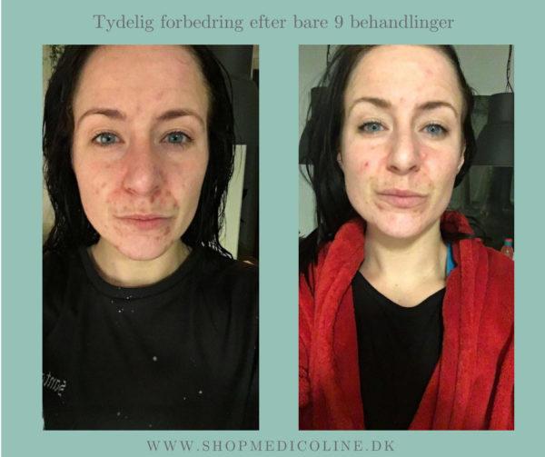 SKINLIGHT Lysterapimaske før og efter